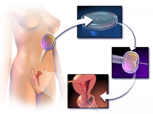 Intracytoplasmic sperm injection